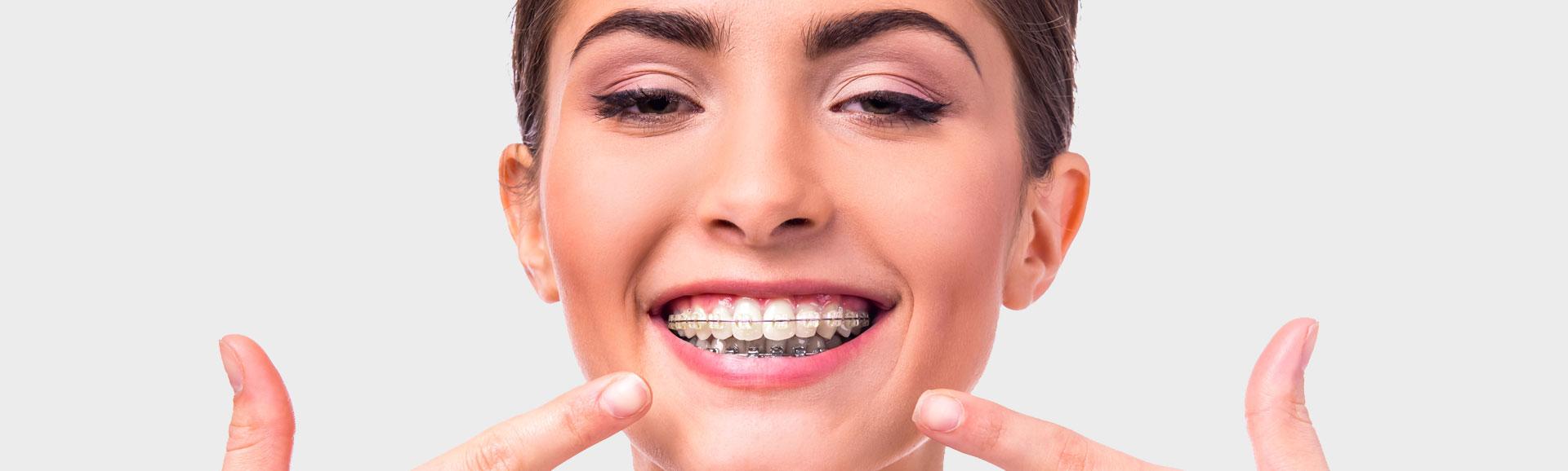 Woman with dental brace